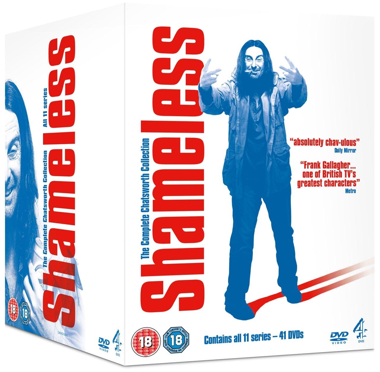 Shameless: Series 1-11 - 2
