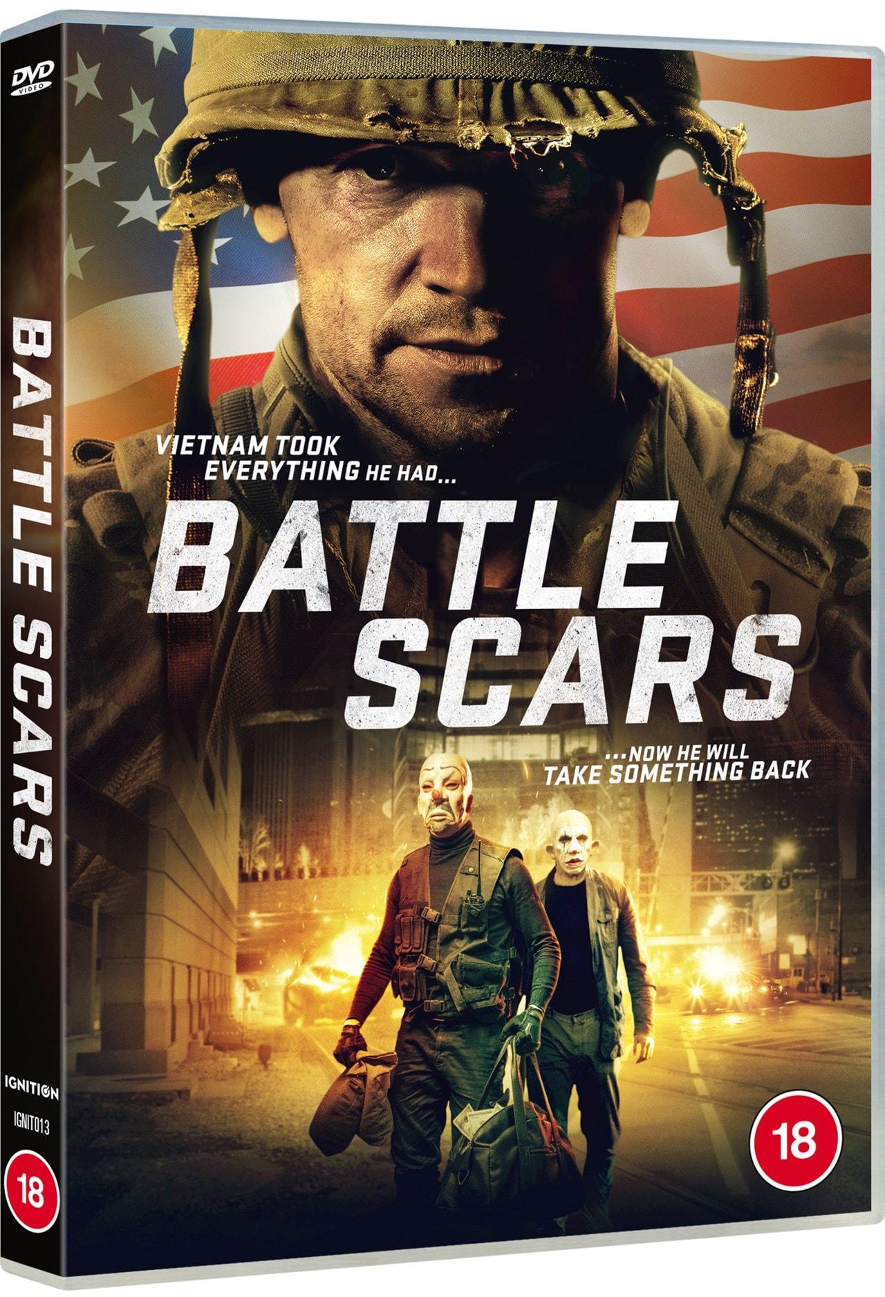 Battle Scars - 2