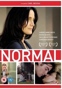 Normal - 1