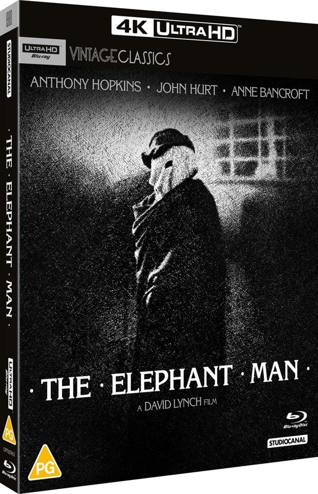 The Elephant Man - 2